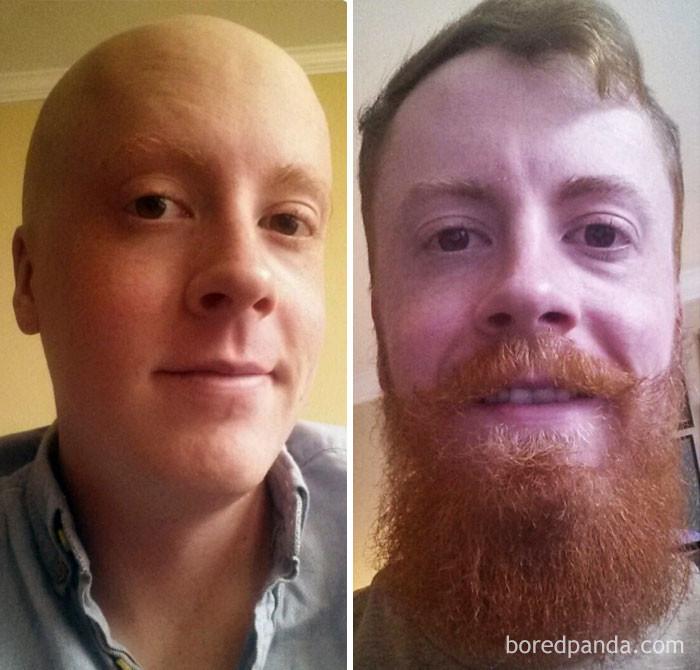 """""""Борода, привет. Я здоров 10 месяцев"""" выздоровление, до и после, заболевание, недуг, преображение, рак, трансформация, фото"""