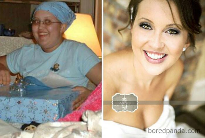 """""""12 лет - на волоске от смерти, 22 года - на собственной свадьбе"""" выздоровление, до и после, заболевание, недуг, преображение, рак, трансформация, фото"""