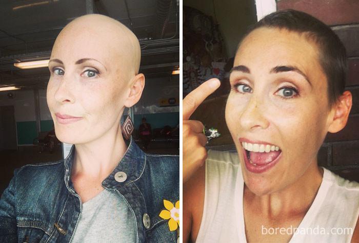 """""""Ресницы и брови вернулись! И волосы дают о себе знать"""" выздоровление, до и после, заболевание, недуг, преображение, рак, трансформация, фото"""