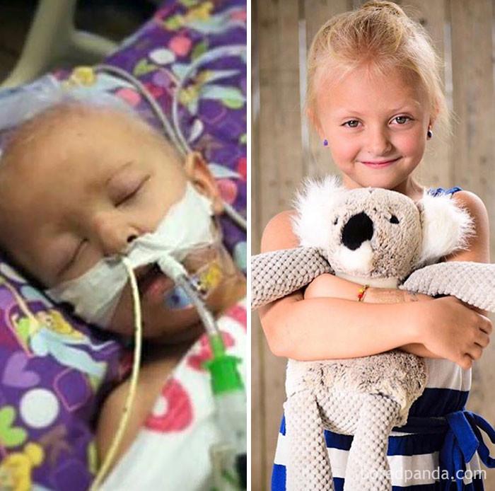 """""""7-летняя Клэр победила саркому Юинга. Рак не на ту напал!"""" выздоровление, до и после, заболевание, недуг, преображение, рак, трансформация, фото"""