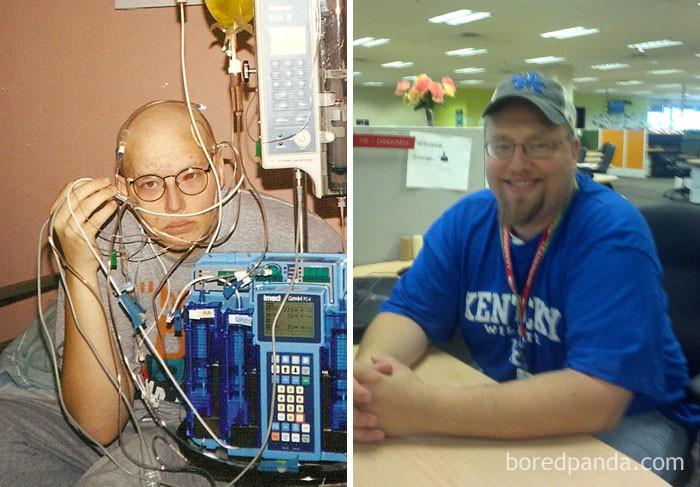 """Лимфома Беркитта 4 стадии. """"По прогнозам, я должен был умереть. Мы с родителями решились на экспериментальную химиотерапию. Сработало! 14 лет без рака"""" выздоровление, до и после, заболевание, недуг, преображение, рак, трансформация, фото"""