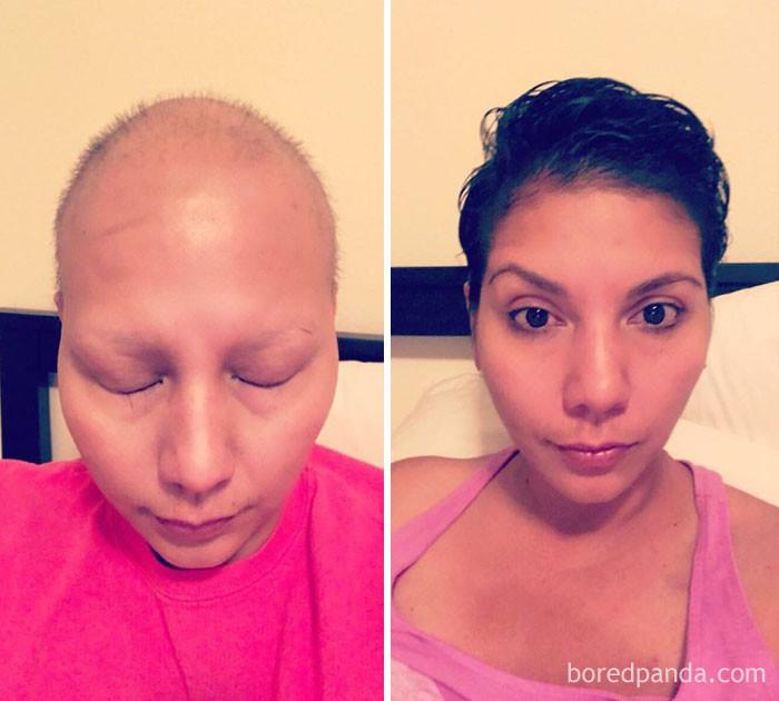 Победила рак груди выздоровление, до и после, заболевание, недуг, преображение, рак, трансформация, фото