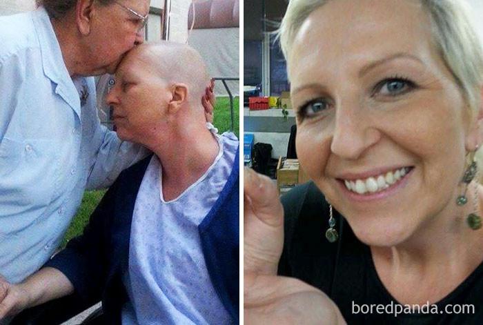 Эта женщина пережила мастэктомию, но 3 года назад она попрощалась с раком! выздоровление, до и после, заболевание, недуг, преображение, рак, трансформация, фото