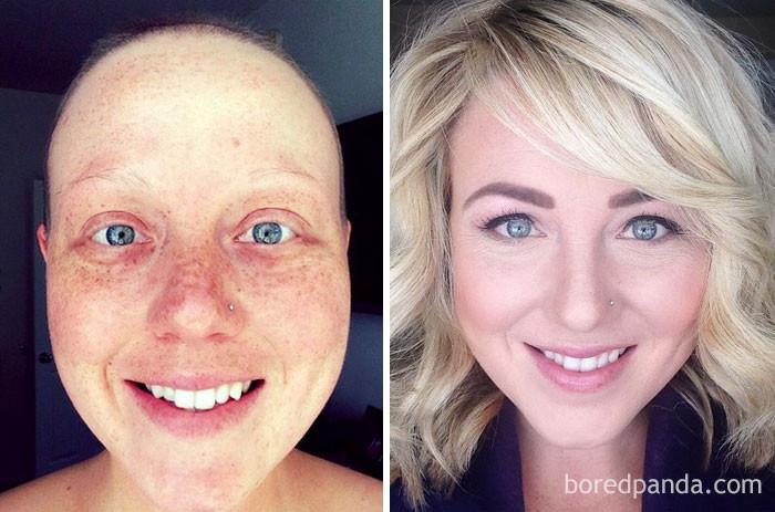 4 операции, 55 химиотерапий, 28 сеансов лучевой терапии - и она с нами! выздоровление, до и после, заболевание, недуг, преображение, рак, трансформация, фото