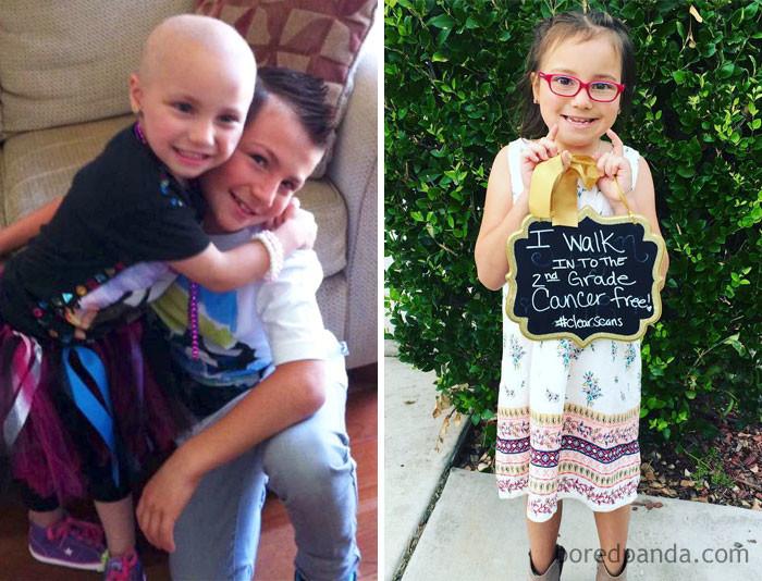 Эта малышка победила рак мозга выздоровление, до и после, заболевание, недуг, преображение, рак, трансформация, фото