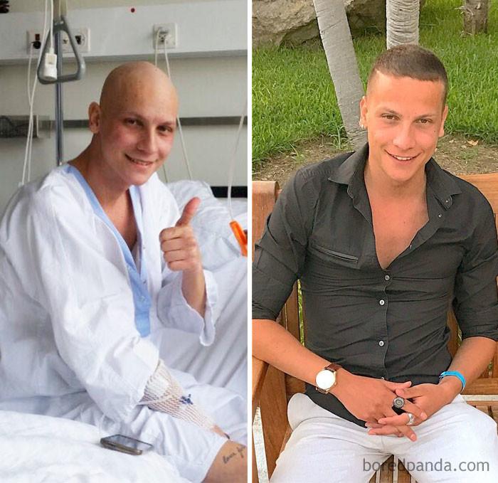 """""""Время залечивает все раны. Спасибо, Бог"""" выздоровление, до и после, заболевание, недуг, преображение, рак, трансформация, фото"""
