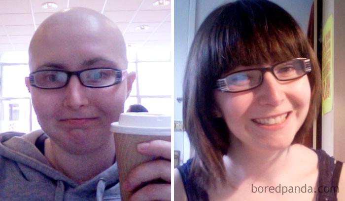 """2 года разницы. """"Я уже была готова сдаться, но одолела этот злосчастный рак яичника"""" выздоровление, до и после, заболевание, недуг, преображение, рак, трансформация, фото"""