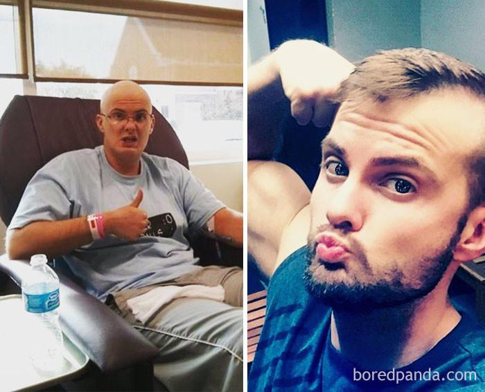 2013 и 2017 выздоровление, до и после, заболевание, недуг, преображение, рак, трансформация, фото