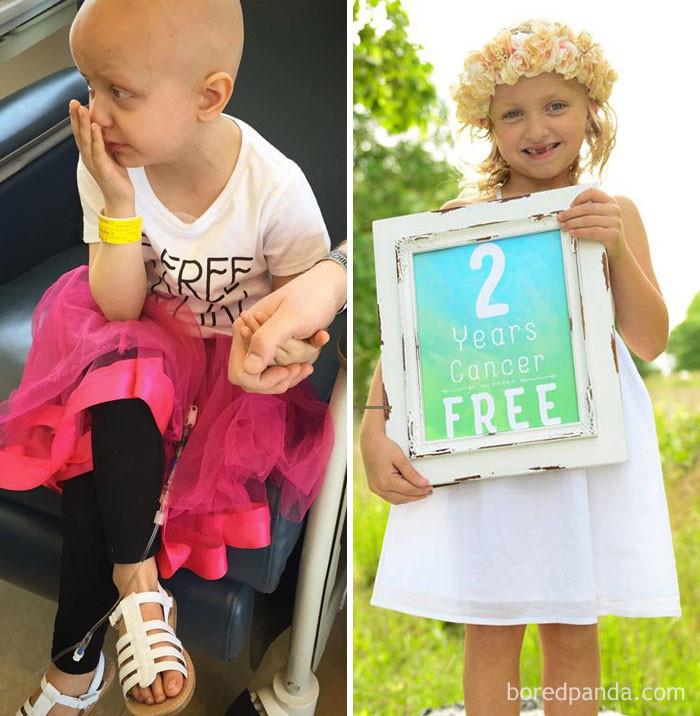 Два года без рака выздоровление, до и после, заболевание, недуг, преображение, рак, трансформация, фото