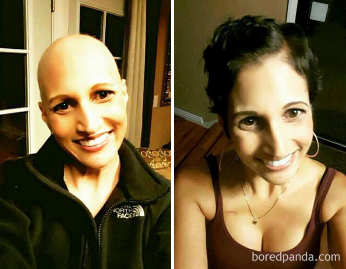 """2 года разницы. """"Жизнь после победы над раком - сложнее и физически, и психологически"""" выздоровление, до и после, заболевание, недуг, преображение, рак, трансформация, фото"""