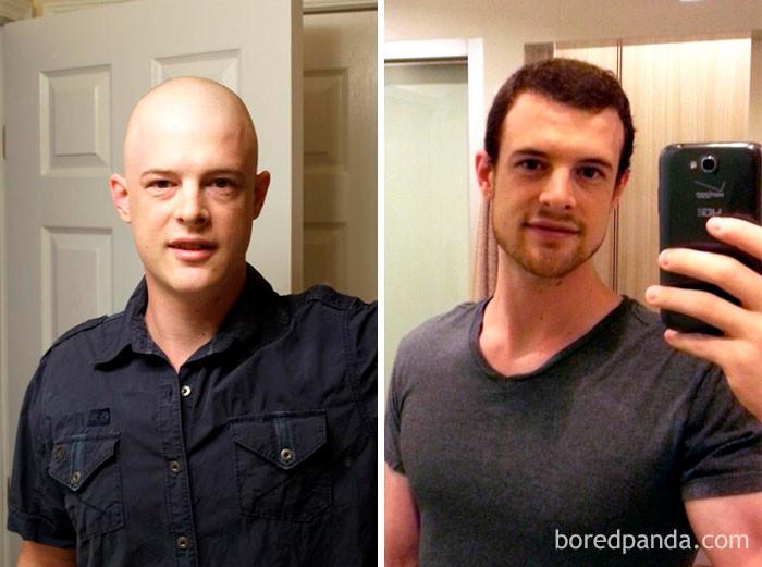 """Разница - 1 год. """"Пошёл к черту, рак"""" - пишет парень. выздоровление, до и после, заболевание, недуг, преображение, рак, трансформация, фото"""