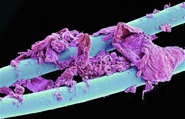 Использованная зубная нить интересно, крупным планом, микромир, микроскоп, под микроскопом, поразительно, странности природы, удивительное рядом