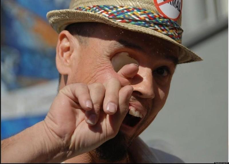 10. Человек с дырой вместо глаза без фотошопа, вот это да!, интересные фотографии, необычные, реальность, фотошоп