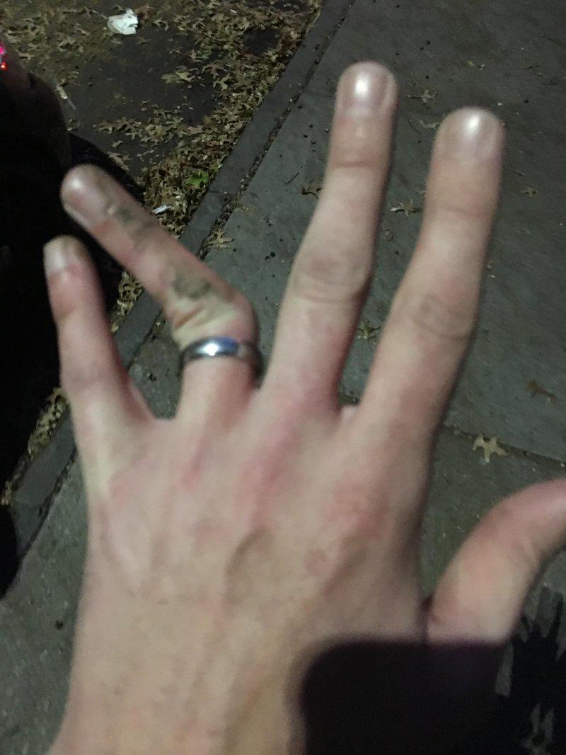 Сломанный палец смешная картинка