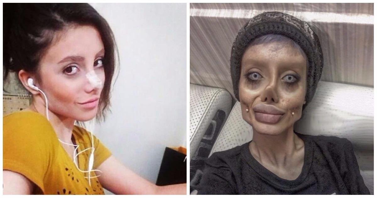 19-metė po 50 plastinių operacijų atrodo it zombis: troško būti panaši į garsią aktorę