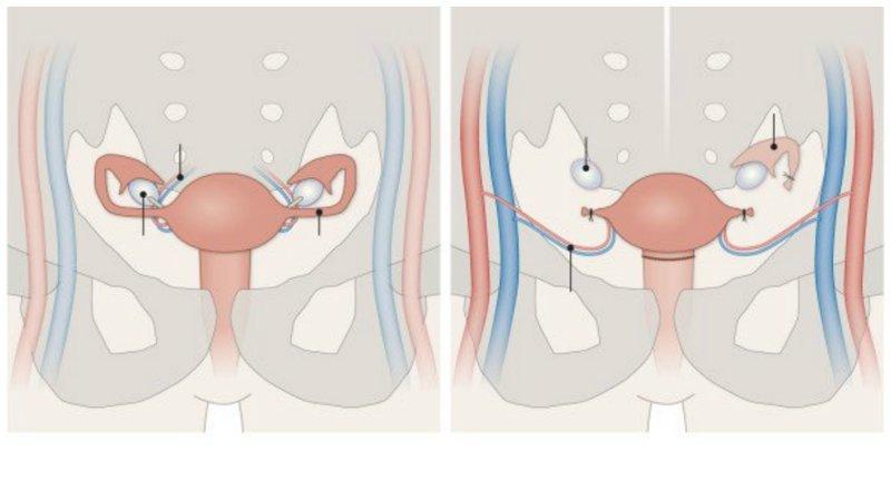 2. Ученые трансплантологи освоили пересадку донорской матки, которая оказалась успешной. На свет появился здоровый ребенок гипотезы, наука, нобелевская премия, открытия, ученые