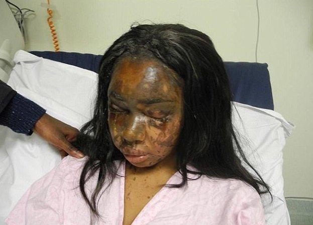 Жертва кислотной атаки нашла в себе силы рассказать о случившемся жертва преступления, кислота, нападение, подруга-предательница, предательство, преступление, преступница, происшествие