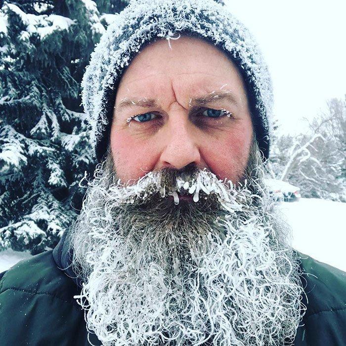 8. Легкое обморожение канада, мороз, погода, сша, фото, холод, явление