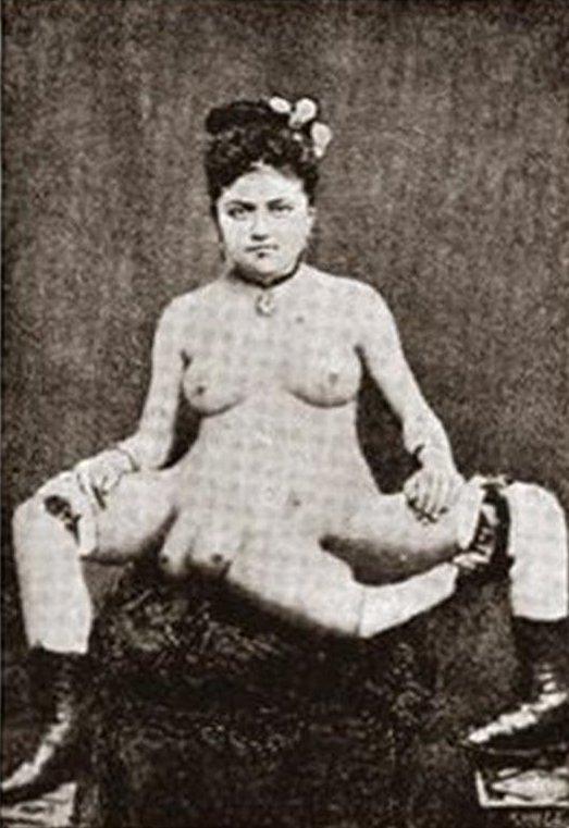 2. Бланш Дюма родилась на Карибском острове Мартиника в 1860 году интересно, история, люди-мутанты, мутации, прошлое, фото