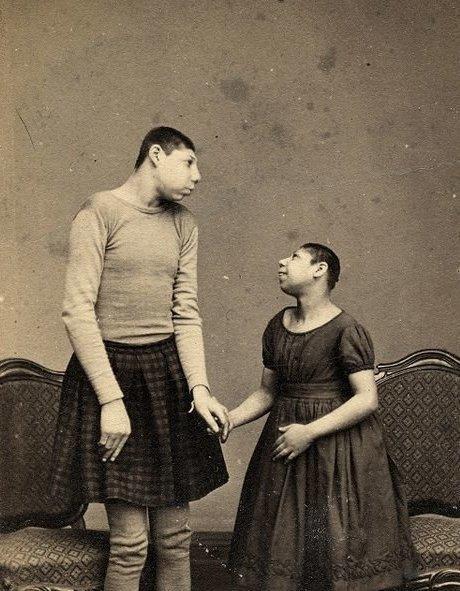 3. Хомио и Лола, дикие дети Австралии, 1885 интересно, история, люди-мутанты, мутации, прошлое, фото