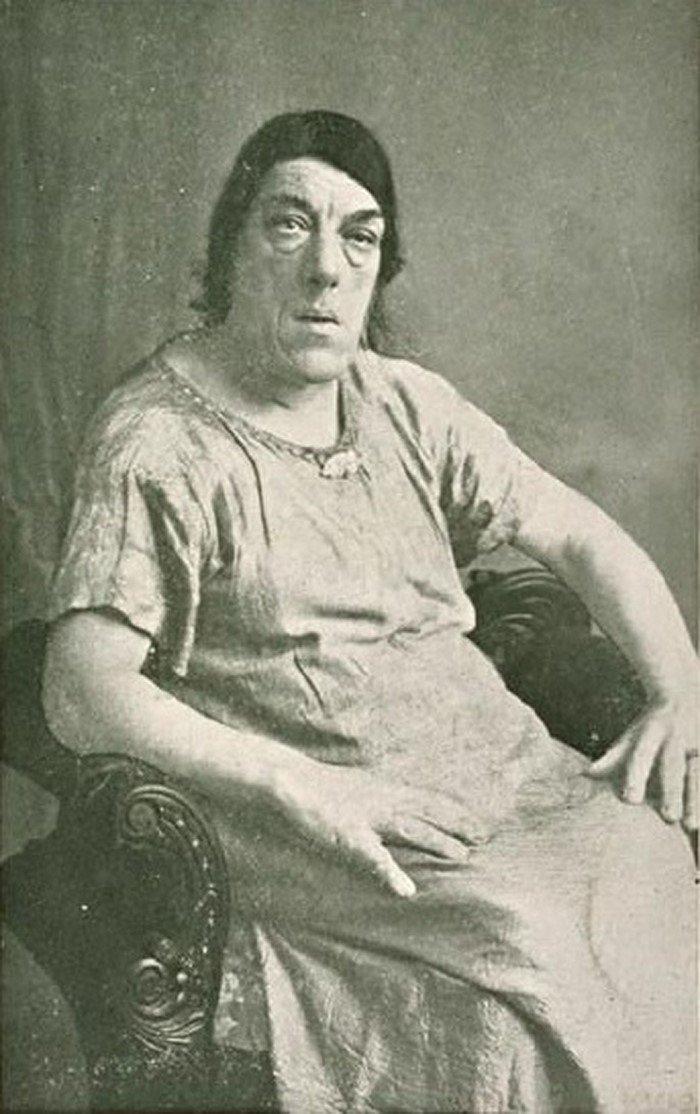 """1. Мэри Энн вышла в 1903 году замуж, примерно в это время у нее начала развиваться болезнь под названием """"акромегалия"""" интересно, история, люди-мутанты, мутации, прошлое, фото"""