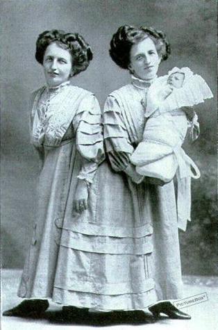 9. Близнецы Жозефа и Роза Блазе с сыном Розы, 1910 год интересно, история, люди-мутанты, мутации, прошлое, фото