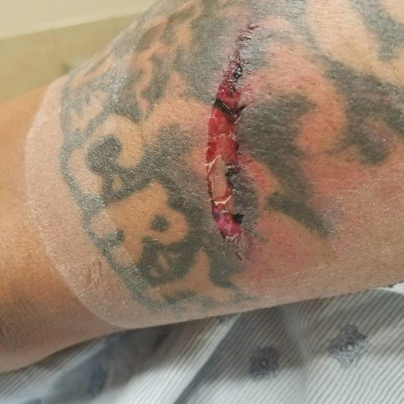 Позже комик опубликовал в Instagram одну из травм от удара микрофонной стойкой в мире, видео, драка, инцидент, комик, сша, юмор