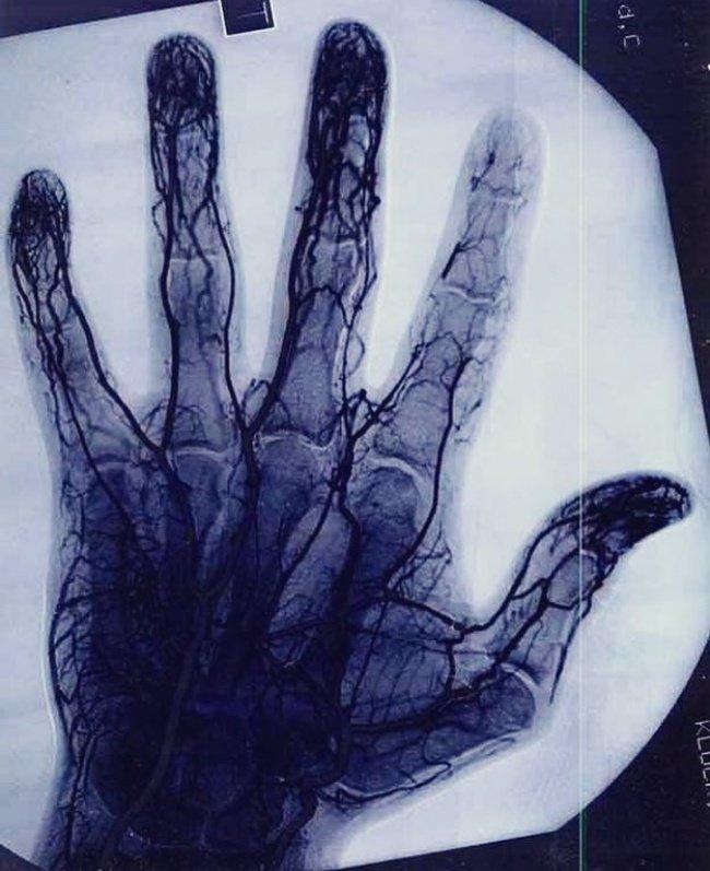 Ангиограмма показывает поврежденные сосуды указательного пальца мастера по йо-йо. взгляд изнутри, необычные вещи, новый ракурс, фото