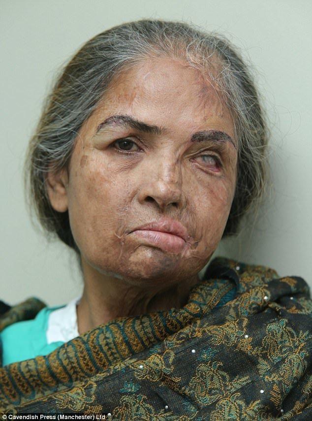 Женщина пережила уже восемь операций, в том числе - по пересадке бровей. врачи, жертвы насилия, кислота, кислотная атака, медицина, пластическая операция, трансплантация, фото