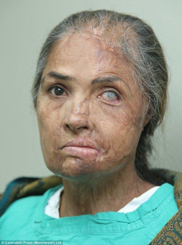 53-летняя Нияз Бано, владелица магазина из Пакистана, потеряла левый глаз после кислотного нападения во время скандала на свадьбе своей 16-летней дочери. врачи, жертвы насилия, кислота, кислотная атака, медицина, пластическая операция, трансплантация, фото