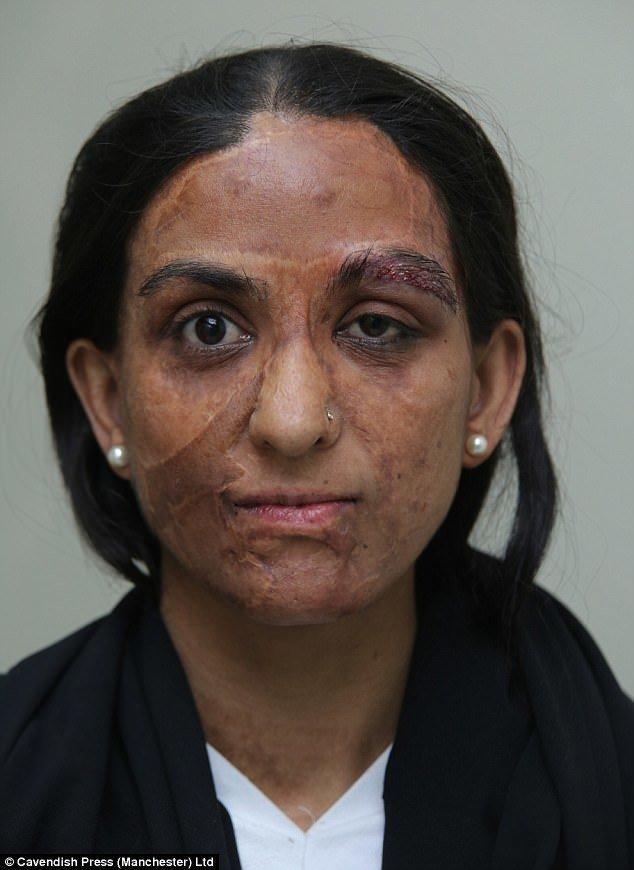 Она пережила четыре реконструктивных операции. На фото - Захида сразу после операции по пересадке бровей. врачи, жертвы насилия, кислота, кислотная атака, медицина, пластическая операция, трансплантация, фото