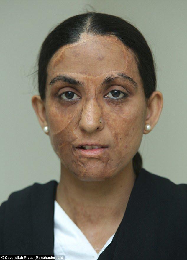 24-летняя уборщица Захида Парвин обожгла лицо газом на собственной кухне. врачи, жертвы насилия, кислота, кислотная атака, медицина, пластическая операция, трансплантация, фото