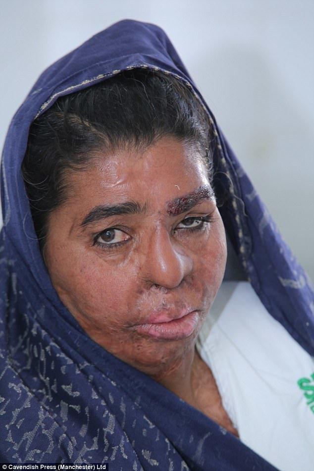 У женщины остались глубокие шрамы, потребовалось четыре реконструктивные операции. На фото - Фатима после операций. Доктор Шахмалак восстановил ее левую бровь. врачи, жертвы насилия, кислота, кислотная атака, медицина, пластическая операция, трансплантация, фото