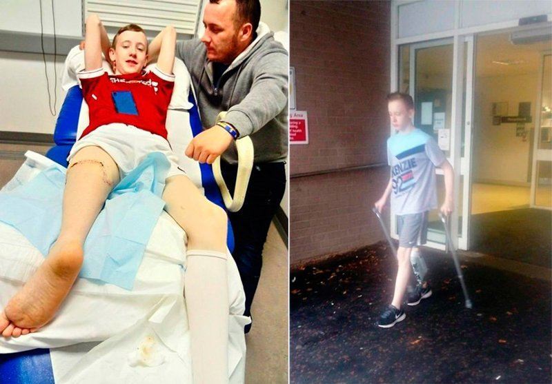 Хирурги пришили ребенку ногу задом наперед, чтобы он мог играть в футбол в мире, люди, нога, спорт, футбол, хирург