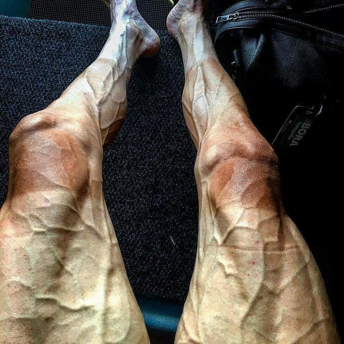"""Ноги велосипедиста после """"Тур де Франс"""" (велогонка длиной 3000-4000 км) интересное, интересные фото, неожиданно, подборка, познавательно, редкие фото, секреты, фото"""