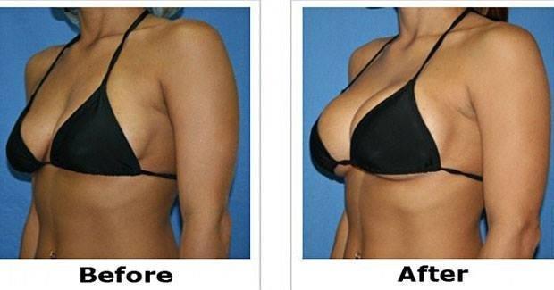 Стоит ли увеличивать грудь?