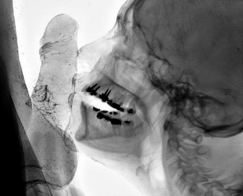 рентген орального секса лежит диване