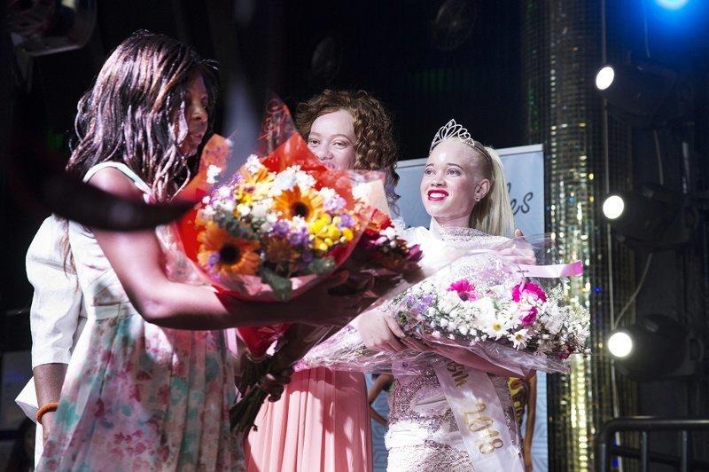 Конкурс «Мисс-альбинос» впервые прошел в Зимбабве ynews, альбиносы, африка, конкурс красоты, ритуальные убийства, суеверия