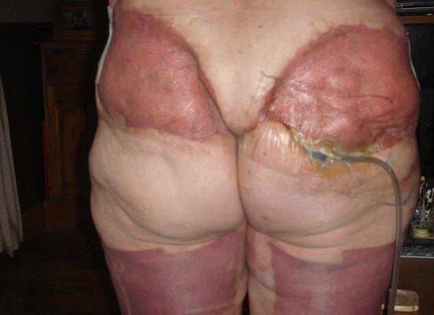 Не смотреть впечатлительным! Имеется некий процент неудачных операций по удалению кожи. Тогда последствия уже ничем не скроешь кожа, красота, невероятное, похудение, растяжки. шрамы, ужас