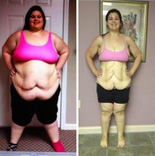 Надо очень сильно похудеть