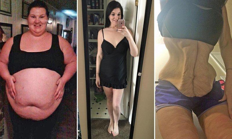 Вся ужасная правда о похудении, которая таки взорвала интернет кожа, красота, невероятное, похудение, растяжки. шрамы, ужас