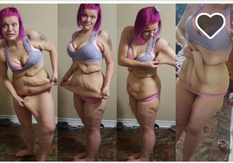Сбросила 85 килограмм кожа, красота, невероятное, похудение, растяжки. шрамы, ужас