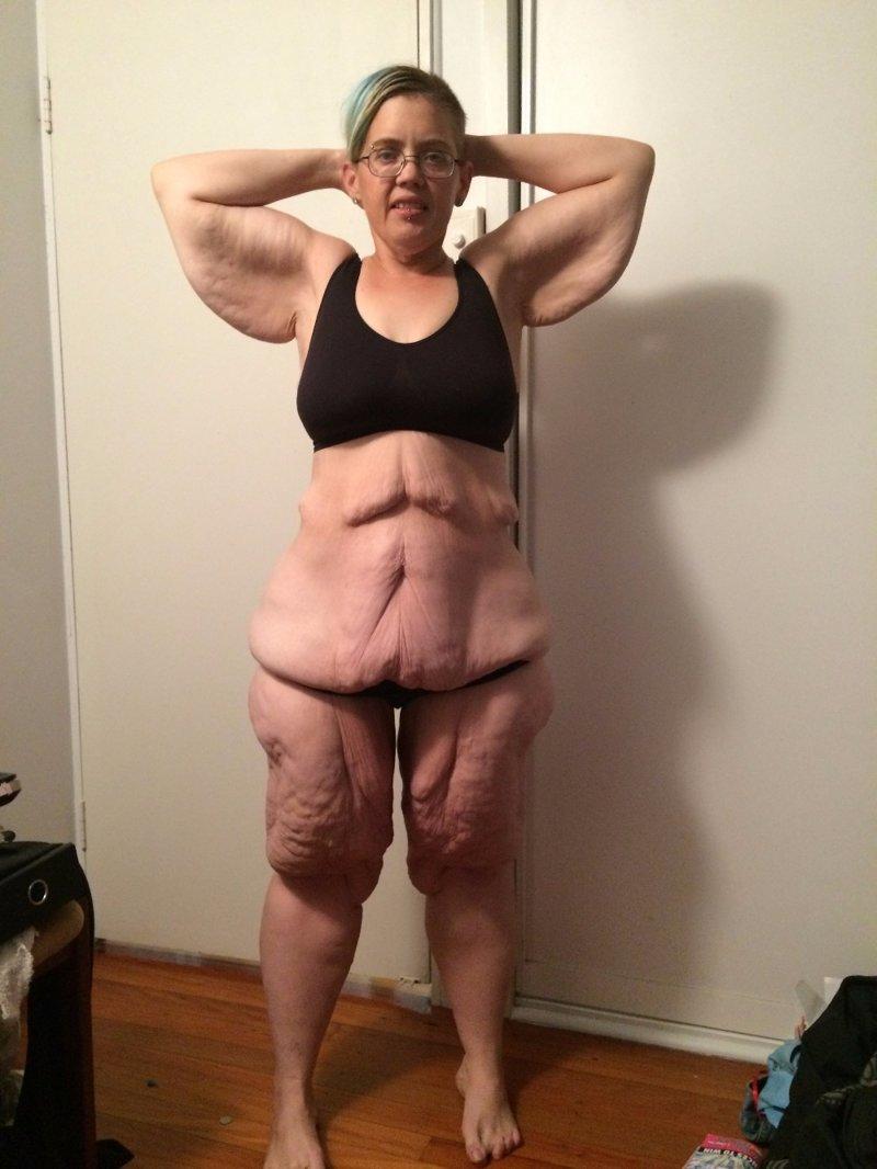 Минус 135 килограмм кожа, красота, невероятное, похудение, растяжки. шрамы, ужас