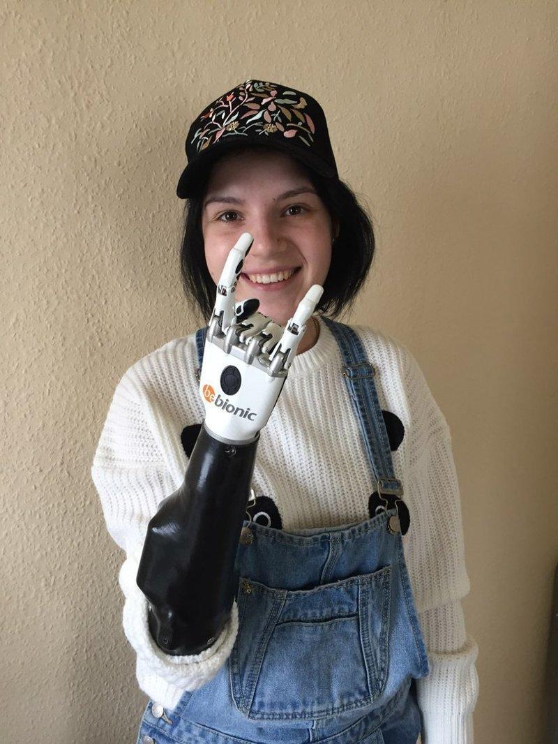 Маргарите Грачевой, которой муж отрубил кисти рук, сделали бионический протез в мире, германия, история, люди, протез, рука