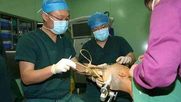 Китайские врачи извлекли из головы женщины гигантские ножницы врачи, госпиталь, китай, несчастный случай, операция, ранение ножницами, случай в больнице, травма головы