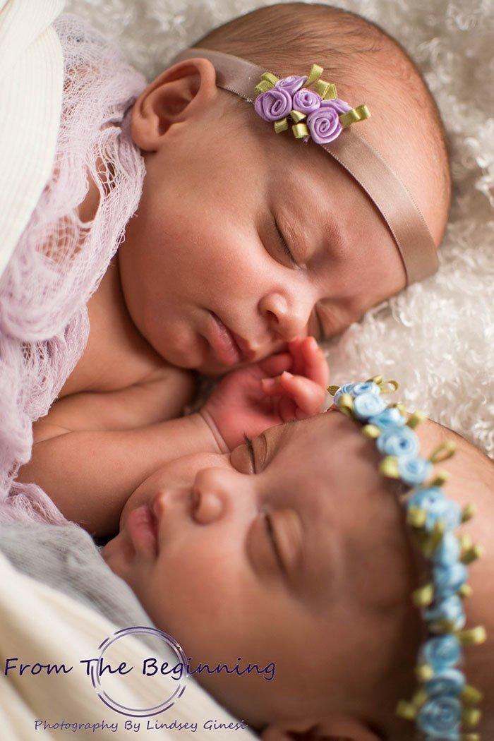 Более того: девочки, развиваясь в материнской утробе, делили одну плаценту и амниотический мешок на двоих. Вероятность этого - один к 10 миллионам Редкий, близнецы, бывает же, вот это да!, идентичные близнецы, родители и дети, рождение детей, шанс