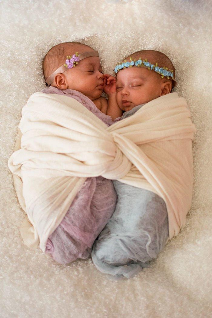 Но, несмотря на все волнения, сейчас Майя и Лайя совершенно здоровы и чувствуют себя прекрасно Редкий, близнецы, бывает же, вот это да!, идентичные близнецы, родители и дети, рождение детей, шанс