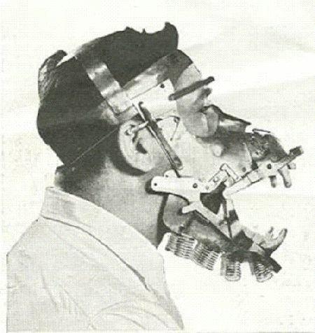 11. Страх вызывают и различные инструменты стоматологов врачи прошлого, дантисты, интересно, стоматологи, фото