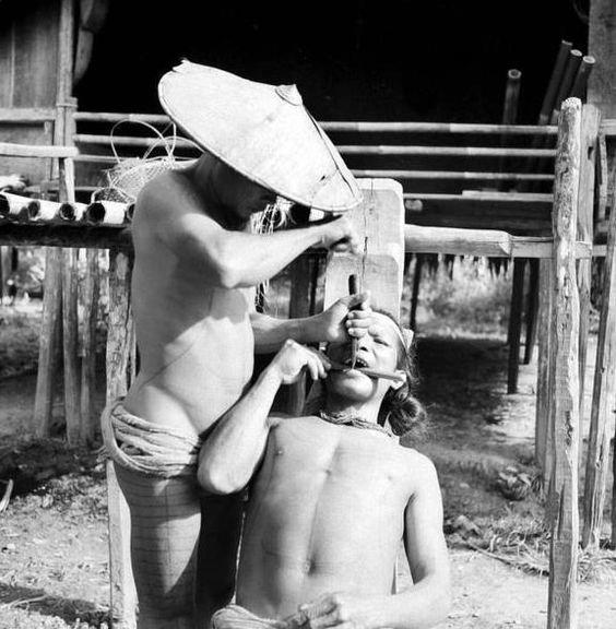 10. А вот удаление зубов в Индонезии, 1938 год врачи прошлого, дантисты, интересно, стоматологи, фото