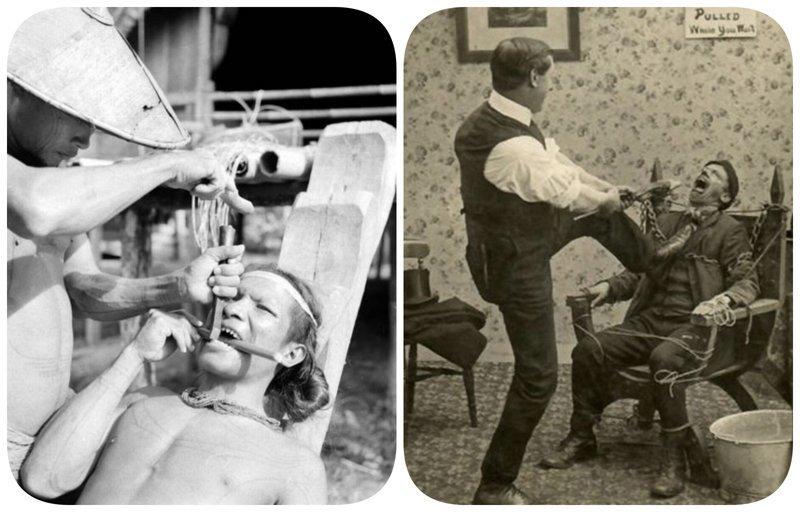Зубная пыточная: ужасы стоматологии прошлого врачи прошлого, дантисты, интересно, стоматологи, фото